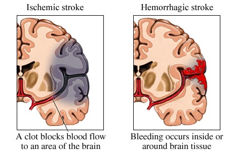 Image result for hemorrhagic stroke vs ischemic stroke